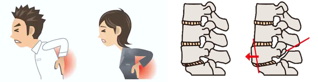 腰椎すべり症の治療方法