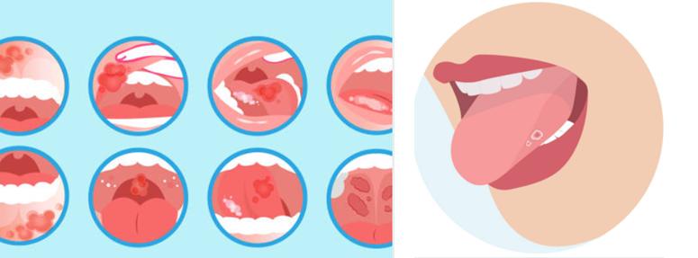 口内炎と舌がんの違い